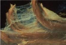 ヨガが身体にいい理由、筋膜(ファシャ)に働くのだ 1